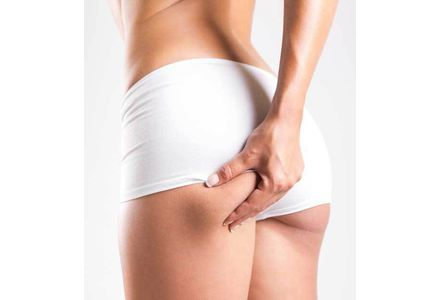 L'alimentation anti-cellulite !