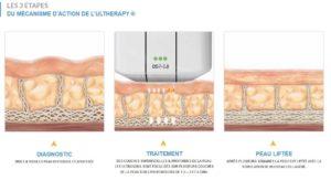 traitement anti-âge visage HIFU Liposonix